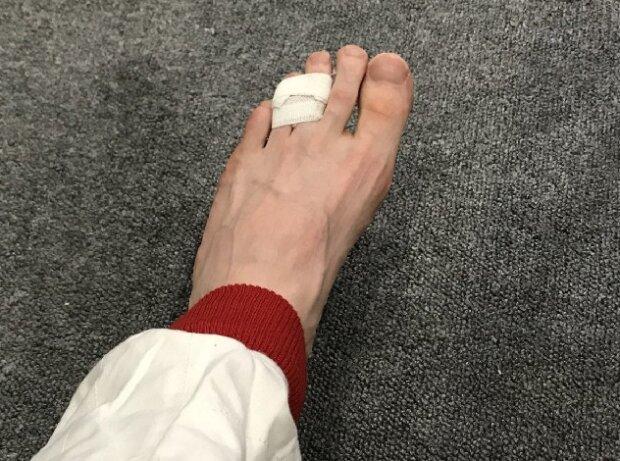 Anthony Davidson, Fuß, Bruch
