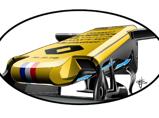 Renault R.S. 18, Frontpartie, Nase, S-Schacht